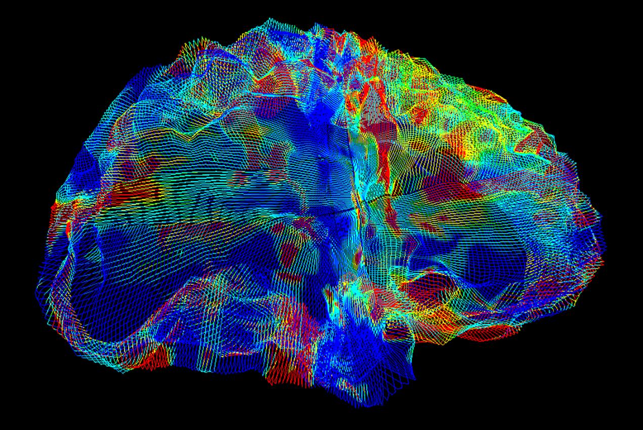 new_alzheimers_brain